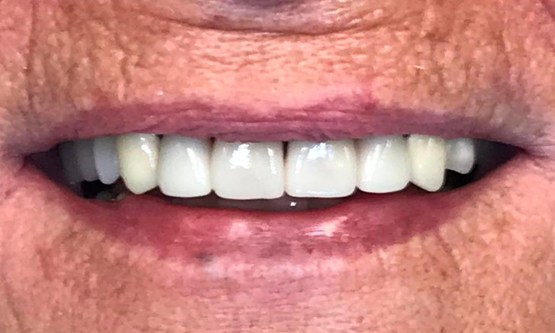 New Smile with Esthetic Crowns
